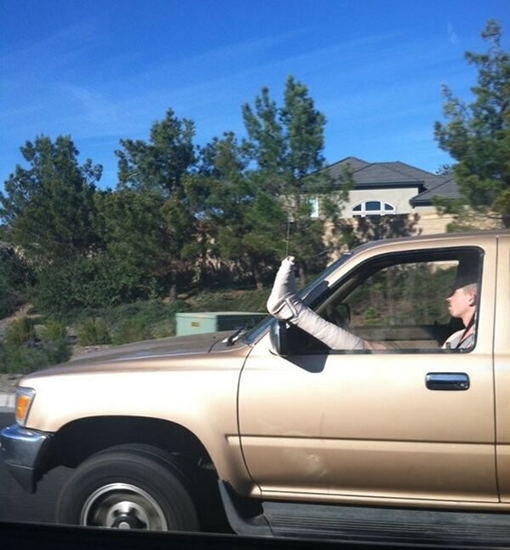Man with broken leg sticking out of car window